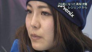 高梨沙羅 二重 アイプチ 鼻 ヒアルロン酸 化粧 濃い 画像