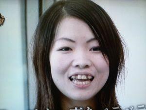 イモトアヤコの演技の評判が下手と話題に!歯は治療して治した?
