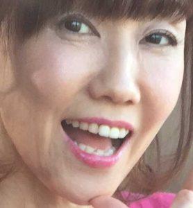 松本伊代 顔 変 ひきつり 画像 発達障害 公表
