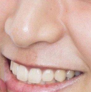 山本美月 鼻毛 ウソ 八乙女光 似てる 画像